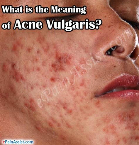 acne caused by internal picture 13