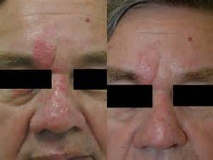 groupon los angeles ca stretch mark removal picture 9