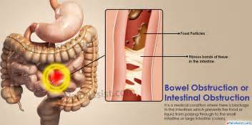 intestinal obstruction symptoms picture 1