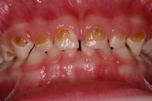 crowns on teeth picture 1