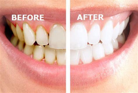 calcium deposits lips picture 9