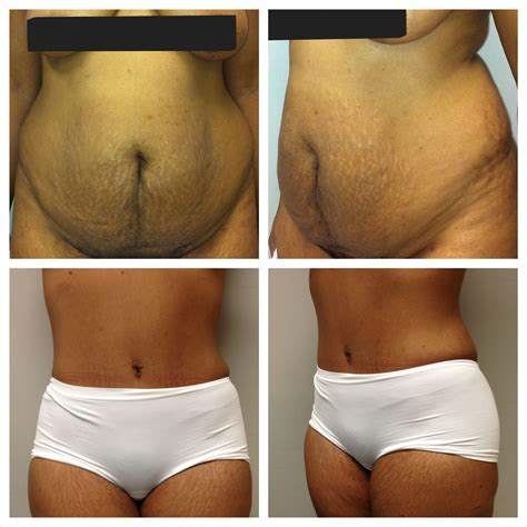 breast augmentation recovery period picture 2