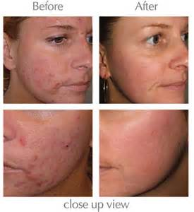 acne treatment scams picture 11