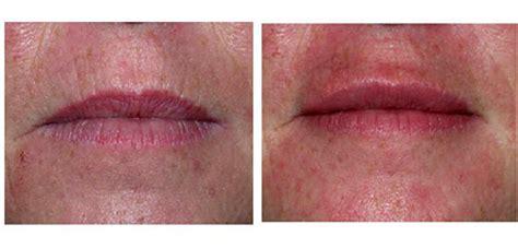 lip plumper on your oris picture 15