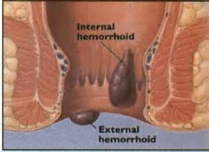 hemorrhoid anemia picture 2