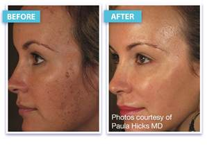 acne med picture 1