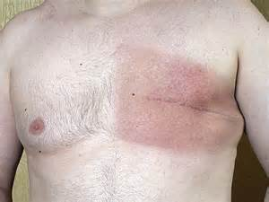does skin cancer hurt picture 14