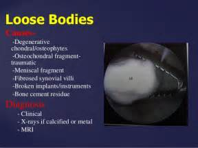 knee joint effusion picture 15