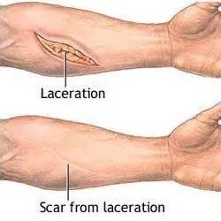 scar tissue on el skin picture 11