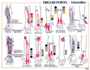carpal tunnel pain relief picture 6