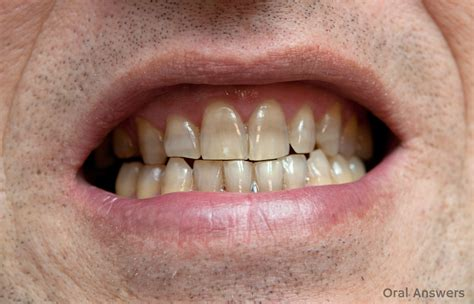 tooth whitening san francisco picture 1