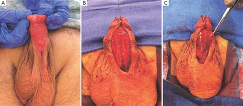 meatotomy und split penis picture 1