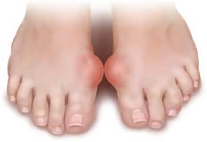 arthrites diet picture 2
