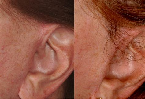 correcting hair problems picture 13