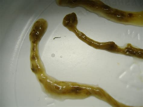 what do intestinal parasites and colon parasites look like picture 5