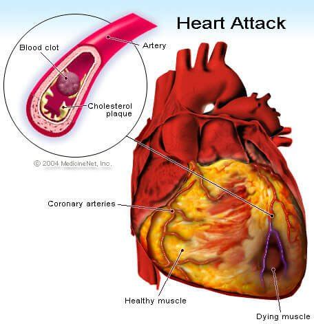 symptoms falling high blood pressure prior heart attacks picture 11