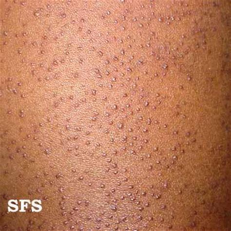 rosacia skin condition- picture and description picture 7