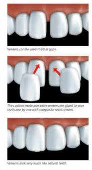 can dental hygients remove cement from teeth with picture 5