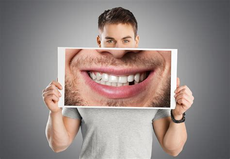 fort worth tooth whitening picture 11