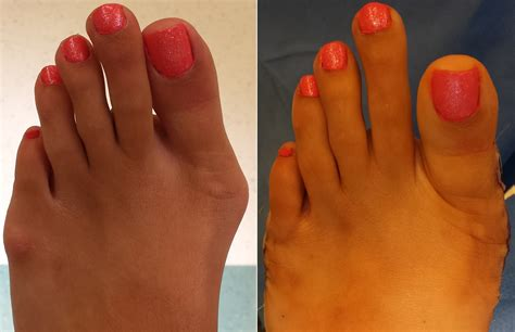 toenail removal surgery fungus picture 9