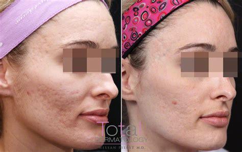 acne from sermorelin picture 2