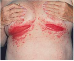 breast yeast infection picture 15