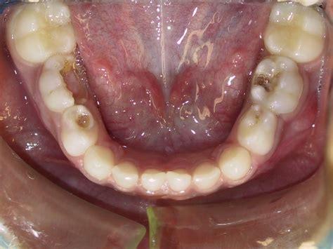 cavaties teeth picture 18