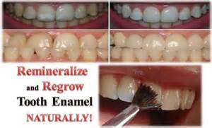 i want a natural way to whiten my h picture 10