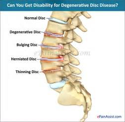 is degenerative joint disease a criteria for disability picture 5