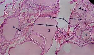 architectural distortion of thyroid gland picture 2