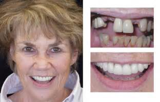 false teeth permanent picture 11