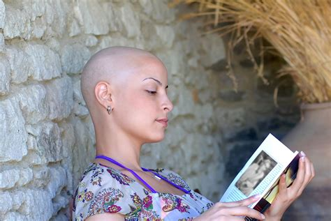 chemotherapy hair loss picture 1