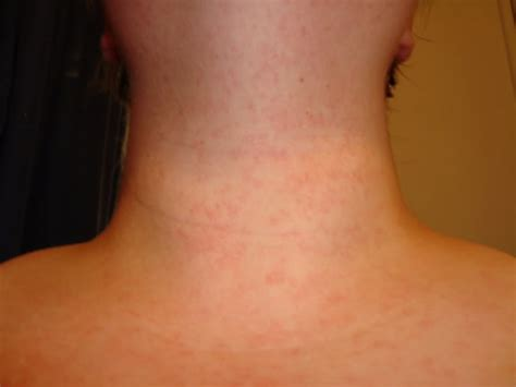 hives and stress picture 6