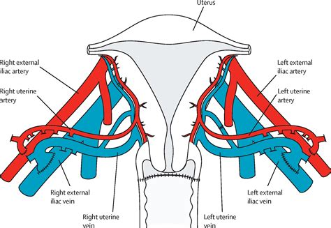 blood flow in uterus picture 13