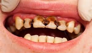st petersburg teeth whitening picture 2