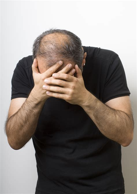 male testosterone therapy and hair loss picture 9