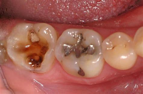 cavaties in teeth picture 5