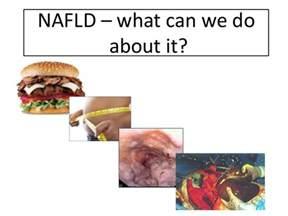 fatty liver disease symptoms picture 2