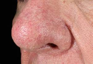 rosacea bulbous nose picture 3