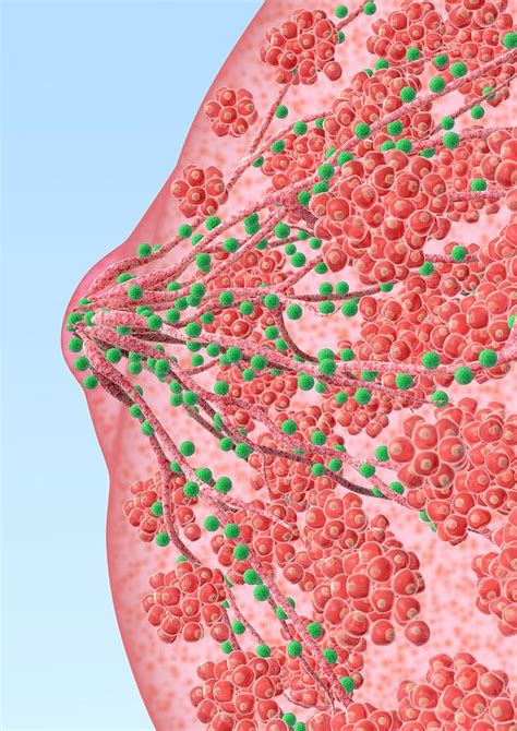 bacterial breast infection picture 2