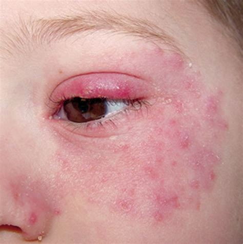 baby skin pimples picture 14