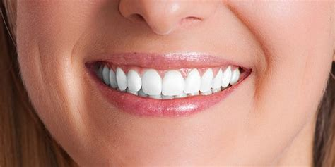 new york tooth whiten picture 6