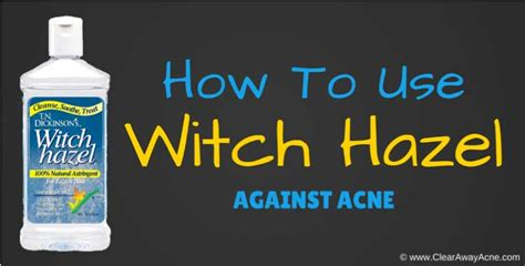 witch hazel is great for acne picture 5