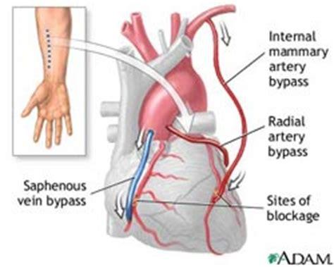 cardiac diet picture 9