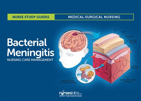 neurologists who treat bacterial meningitis in illinois picture 2