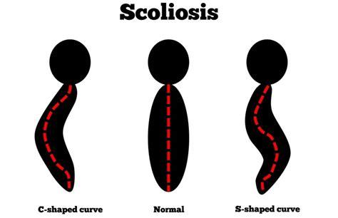 back pain treatment picture 5