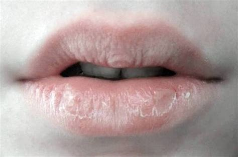 chapped lips picture 13