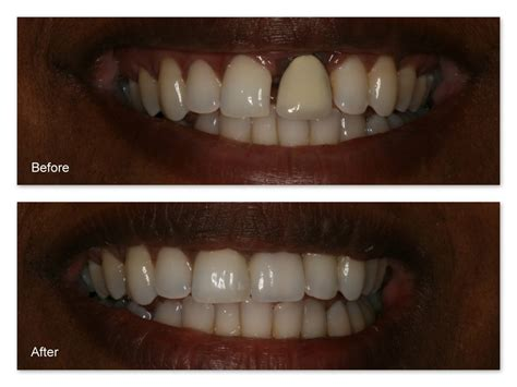 filling cavities in wisdom h picture 15