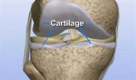 cartillage of the hip joint picture 5
