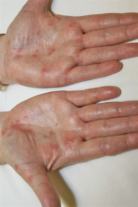 chinese medicine for warts picture 2